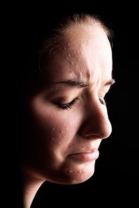 Alternative Therapies For Depression - Image of Woman Crying
