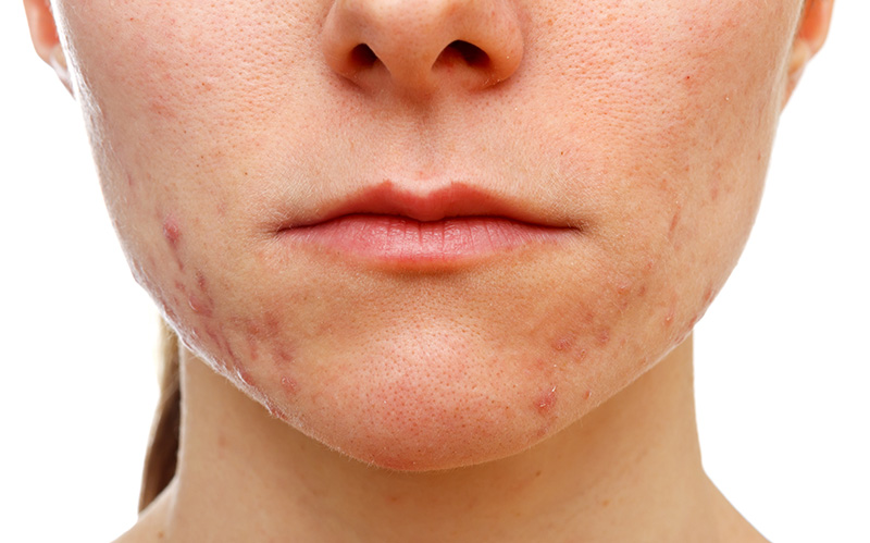 Image of Girl Suffering Acne - Acne Herbal Medications
