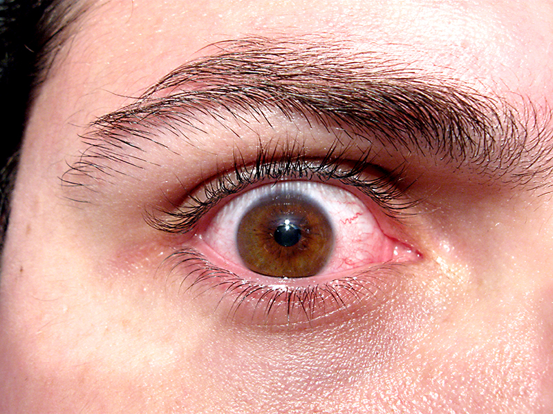 Image of man's eye wide with panic and anxiety